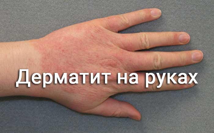 Как выглядит дерматит на руках фото как лечить