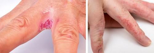дерматит между пальцами