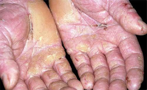 дерматит на ладонях рук