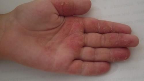 начальная стадия дерматита на руке