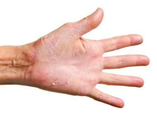 Сухая экзема на руке