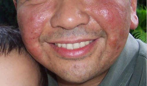 Экзема на лице у мужчины