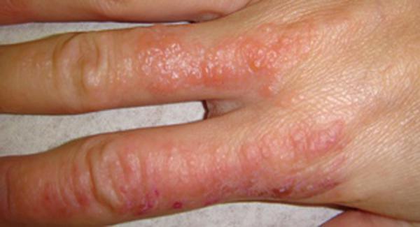 Крючком дисбактериоз и аллергия у детей лечение
