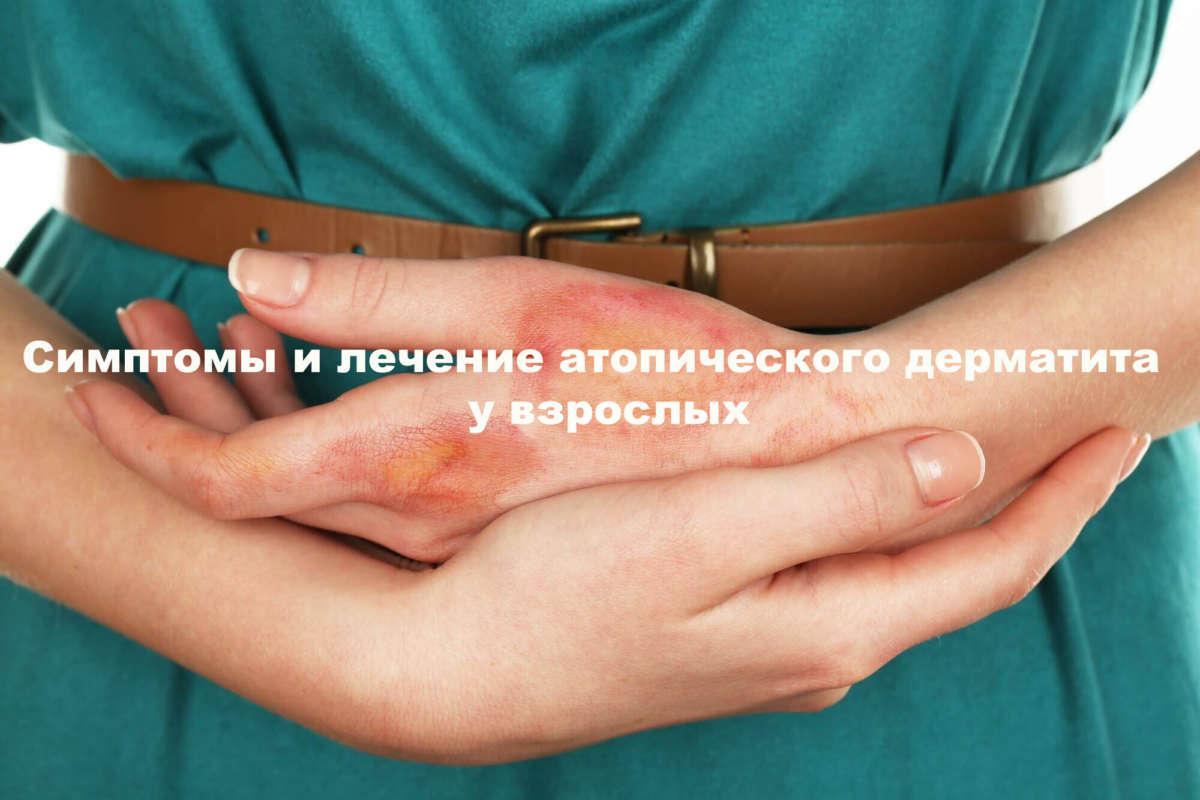 Атопический дерматит у взрослых: лечение, симптомы и причины