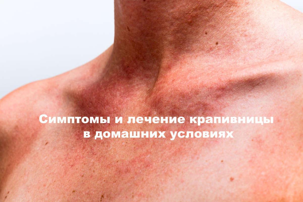 аллергия похожая на крапивницу