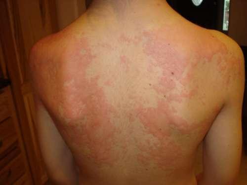 Спина, покрытая красной сыпью