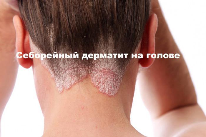 Аллергический дерматит на голове — Аллергия