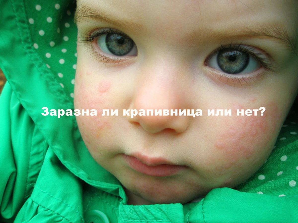 Малыш с покраснениями на лице