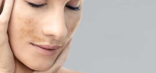 Лицо женщины с коричневыми пятнами