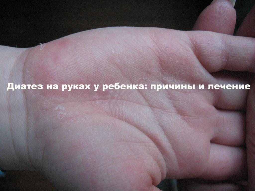 рука человека с покраснениями