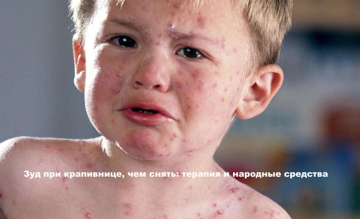 может ли быть аллергия на мустеллу