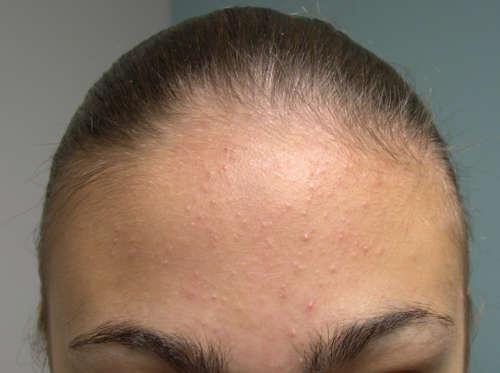 Аллергический дерматит на лбу возле роста волос thumbnail