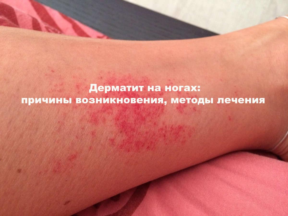 Красные пятна на коже ноги