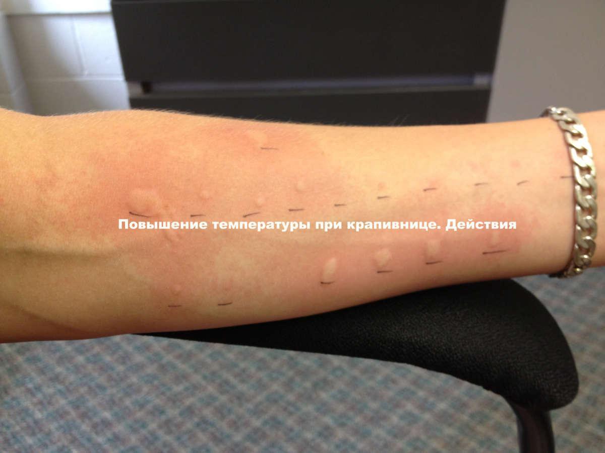 бывает ли аллергия на плантекс