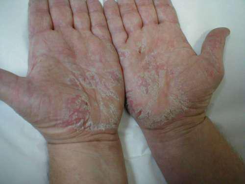 белые и красные пятна на руках, облезающая кожа