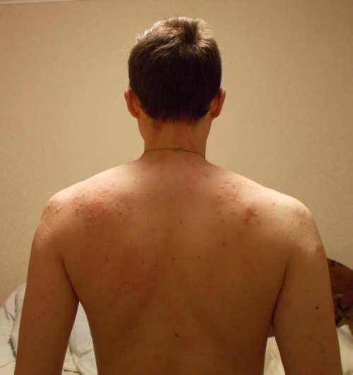 Спина мужчины, покрытая красными высыпаниями