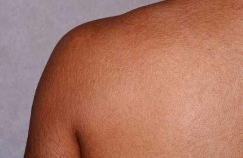 Плечо человека
