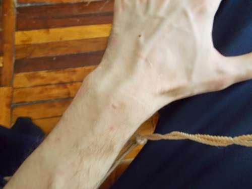 рука с волдырями