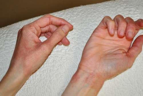 руки с покраснениями