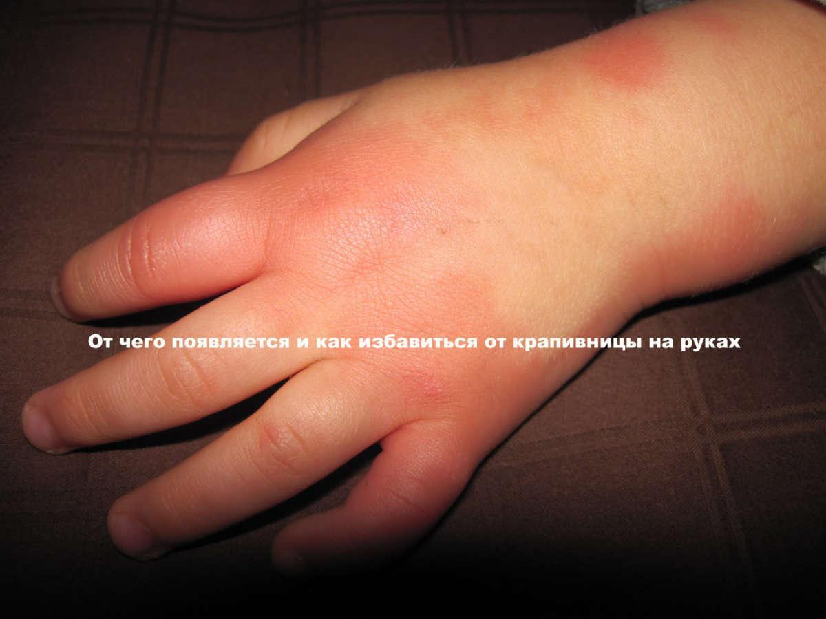 рука, покрытая покраснениями