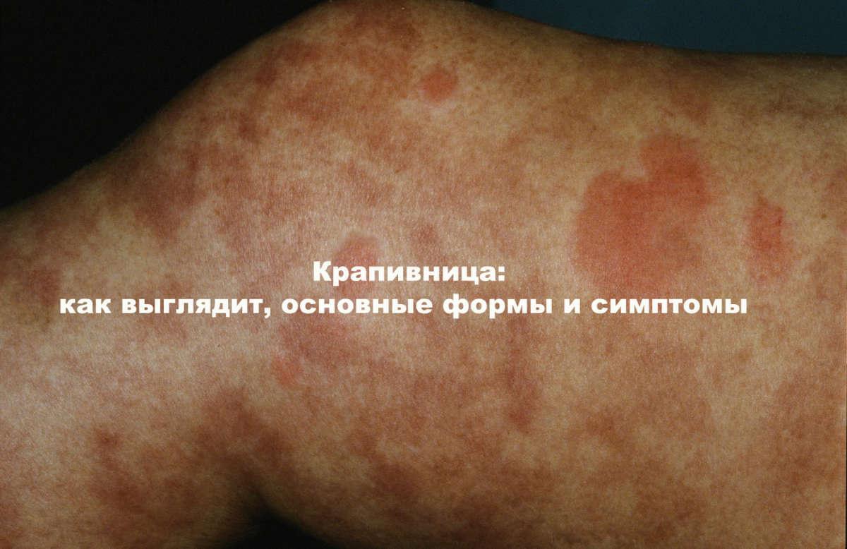 Нога человека, покрытая красно-бордовыми пятнами