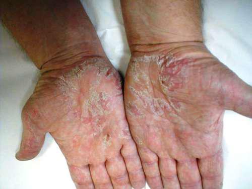 Руки с облезающей кожей