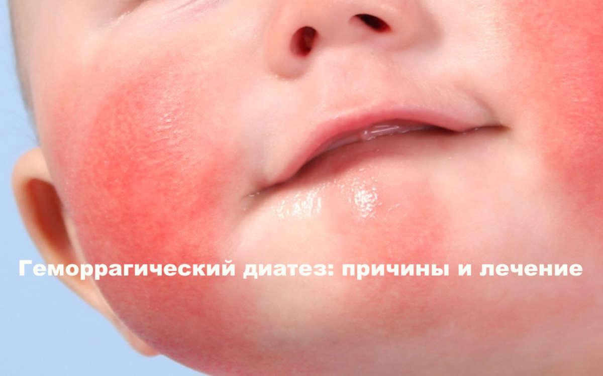 лицо малыша с красными пятнами на щеках и подбородке
