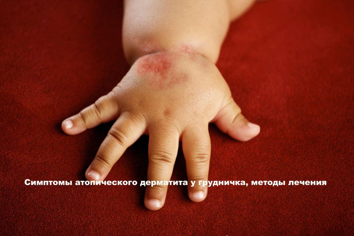 детская ручка с красным пятном