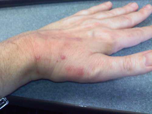 рука мужчины, покрытая крапивницей
