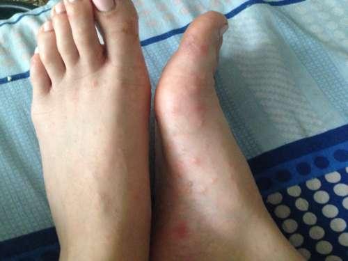 красные пятна и прыщи на ногах