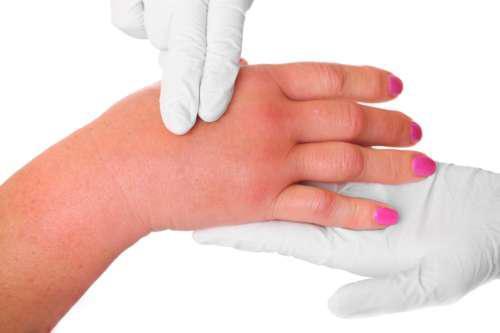 Отёкшую руку ощупывают руки в перчатках