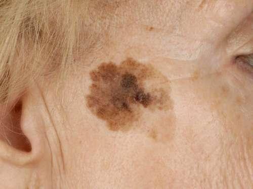 Коричневое пятно на лице пожилой женщины