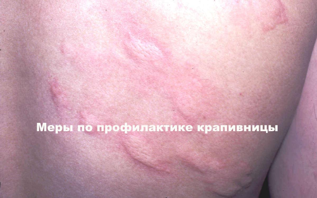красные пятна на теле