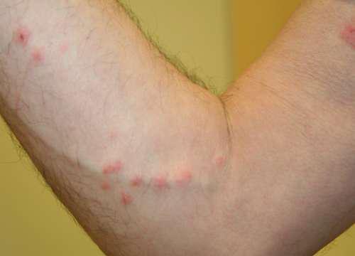 Красные пятна на руке человека