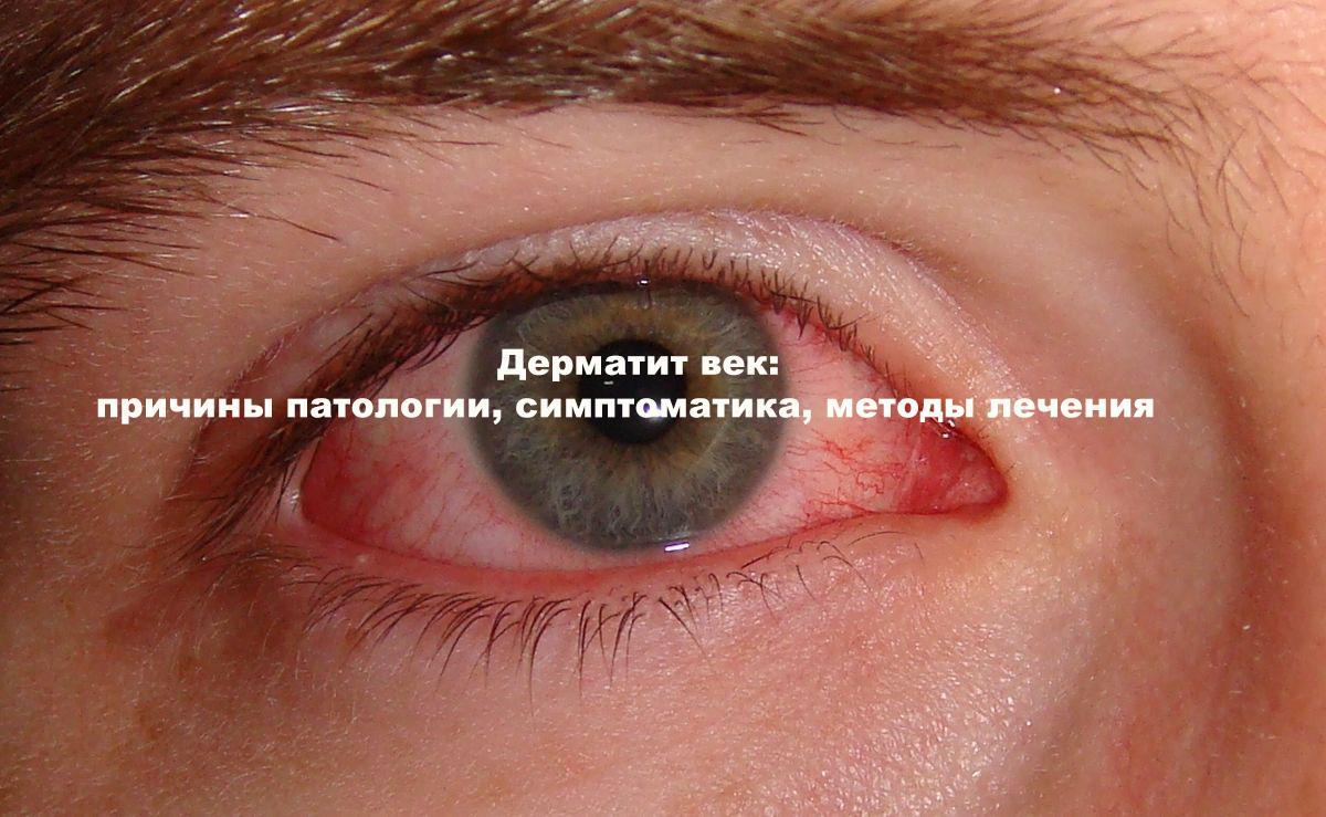 Как лечить аллергический дерматит на глазах