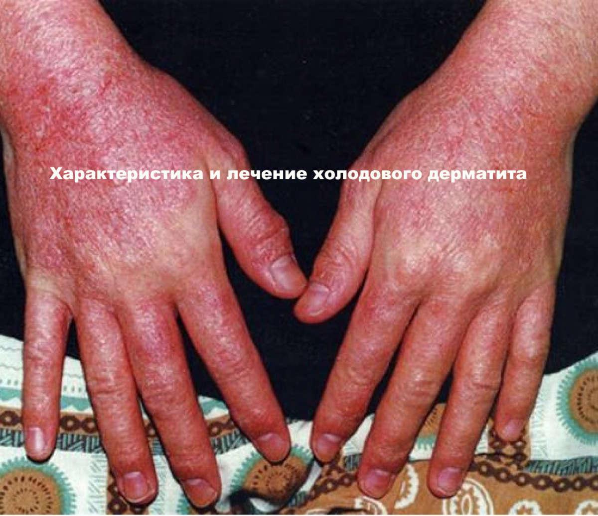 руки, покрытые дерматитом