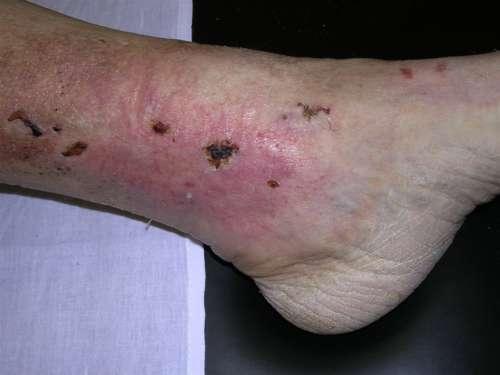 нога с болячками