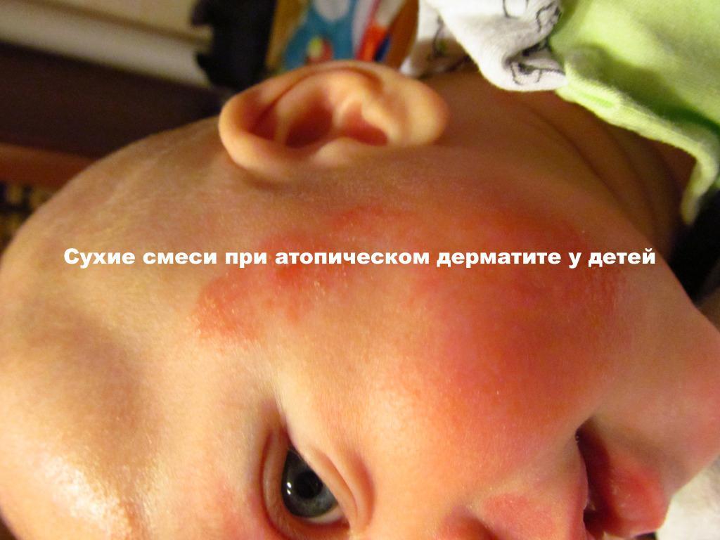 Аллергия экзема у ребенка