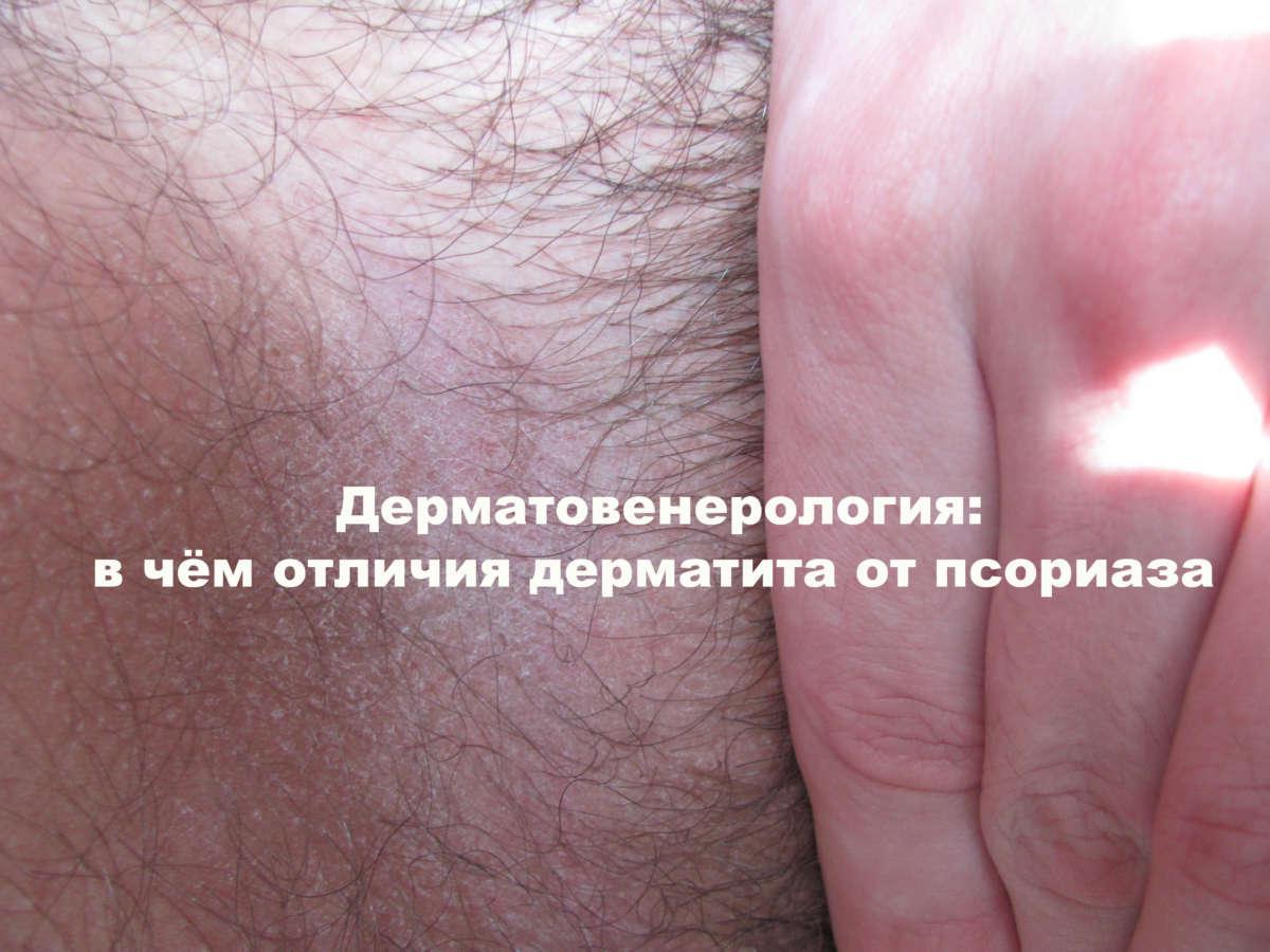 кожа, покрытая красной коркой
