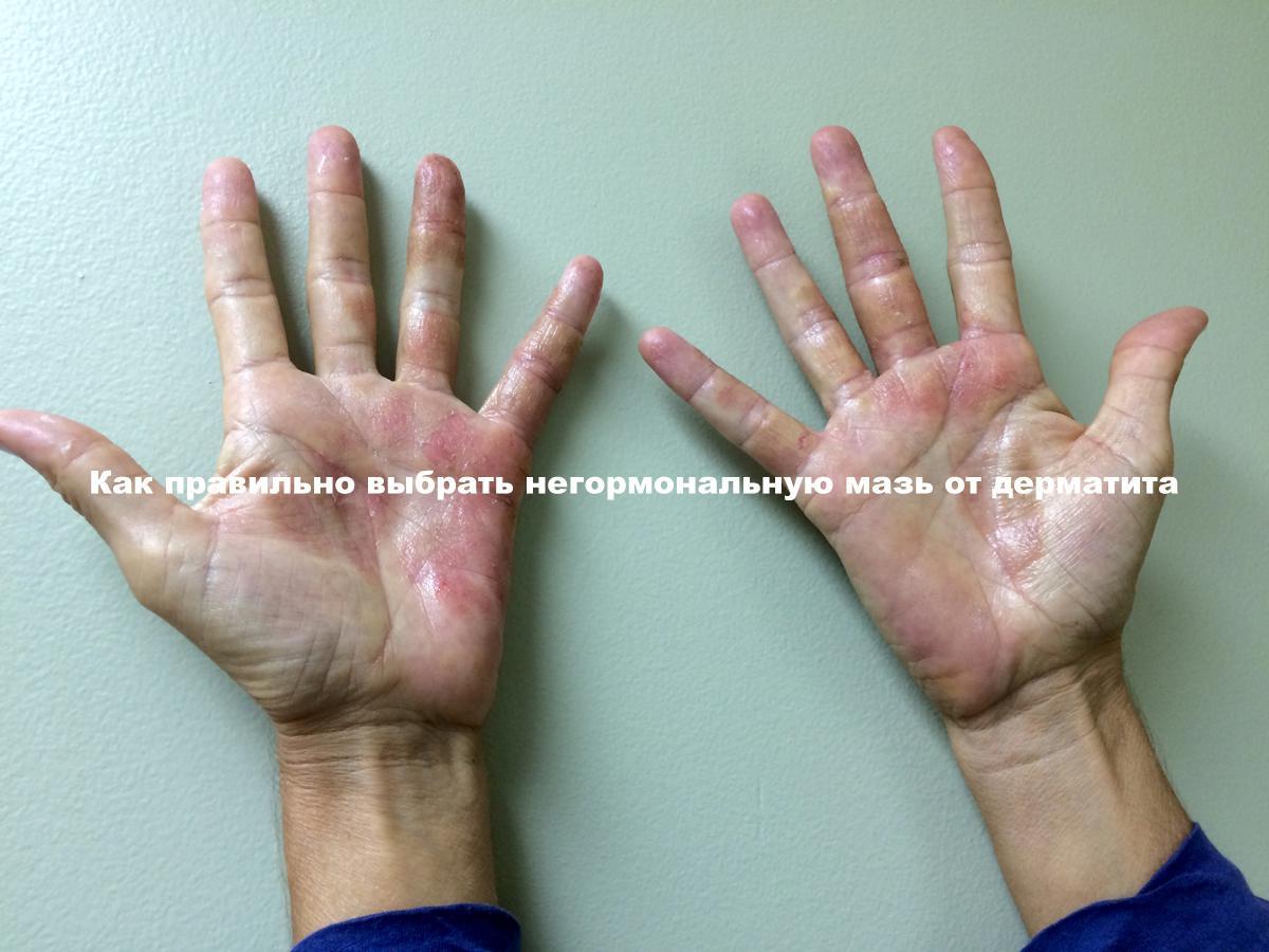 руки с покраснениями, намазанные кремом