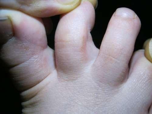 фотография пальцев на ноге