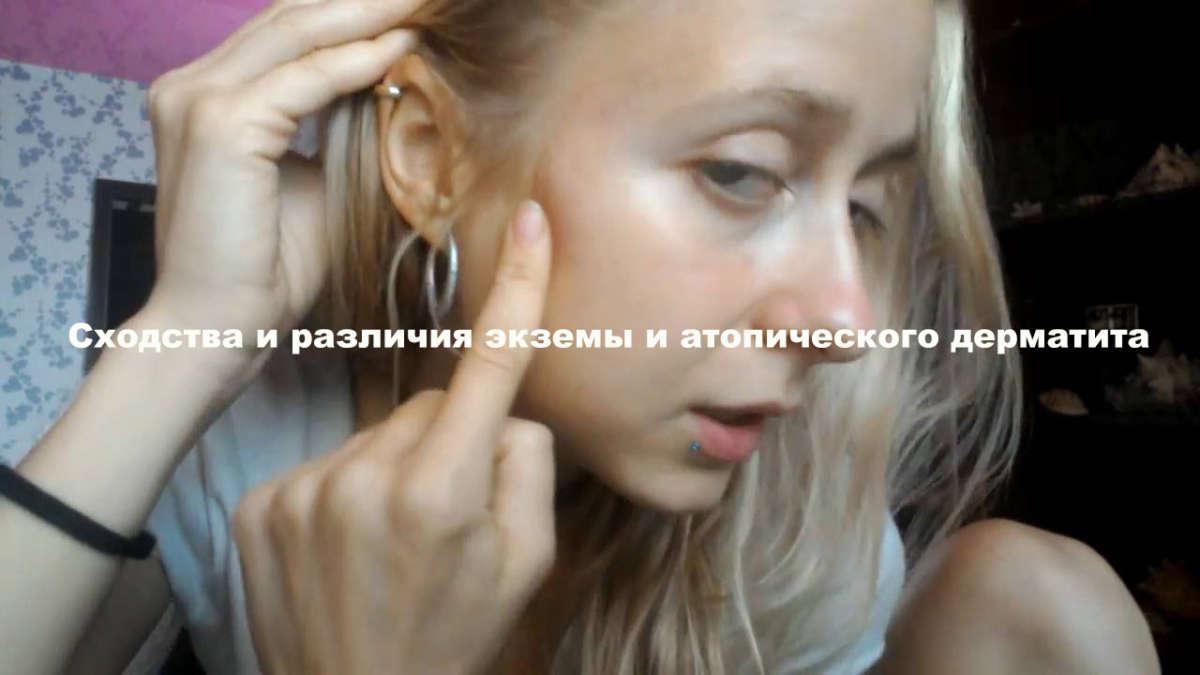девушка указывает пальцем на свою щеку