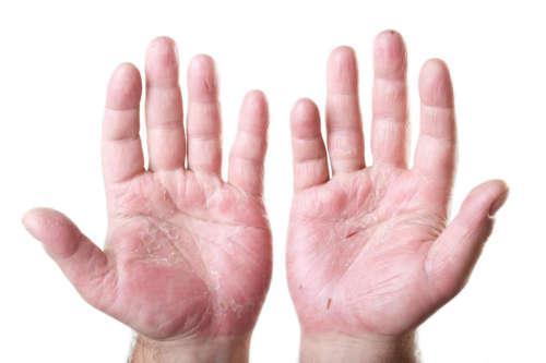 руки, поражённые дерматитом