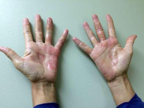 руки, покрытые красными высыпаниями