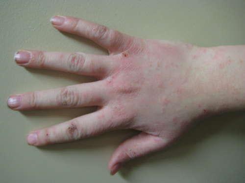 рука с красными точками