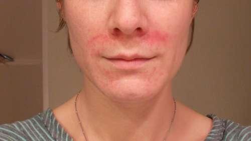 лицо, покрытое красными пятнами вокруг рта