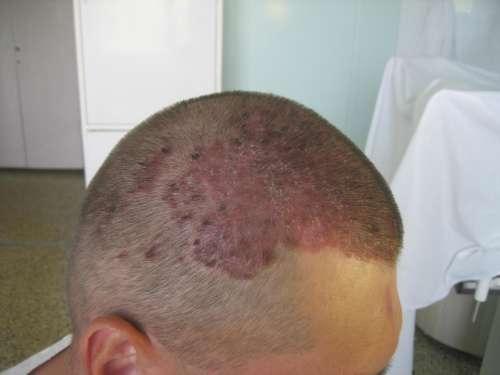 кожа головы мужчины покрыта красным пятном