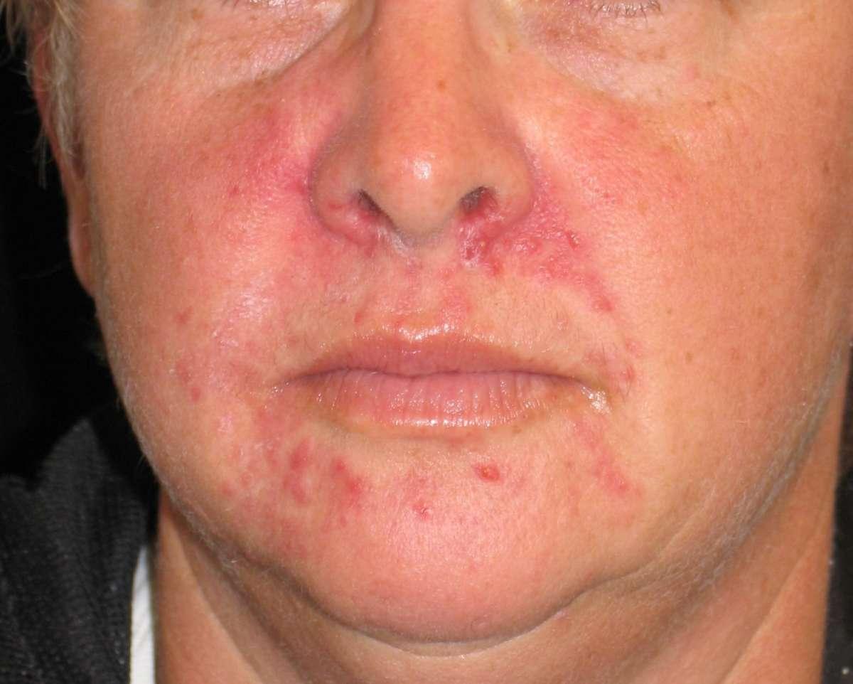 allergiya-na-spermu-simptomi