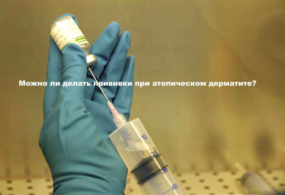 Гирудотерапия при нейродермите отзывы