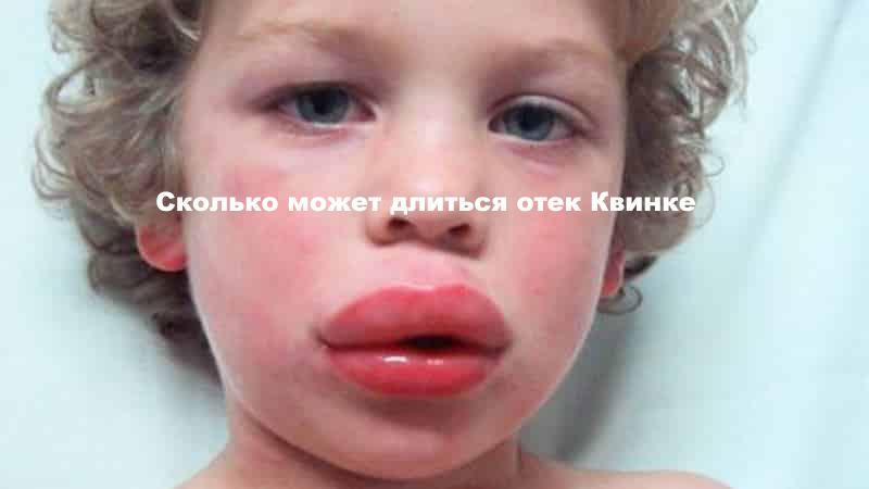 мальчик с очень сильно опухшими губами